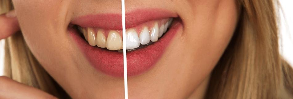 Für strahlende Zähne